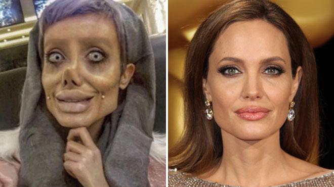 PHOTOS. Elle voulait ressembler à Angelina Jolie, le résultat est épouvantable