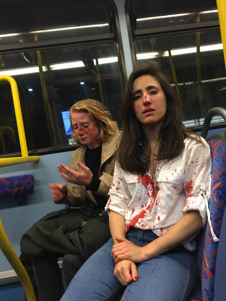 RTL Today - Homophobic attack: Lesbian couple violently beaten in ...